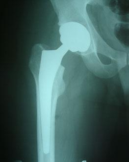 рентген-после-операции