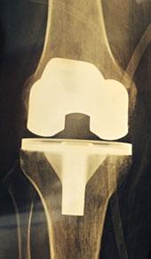 рентген-тотального-эпкс