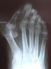 рентгенография-стопы
