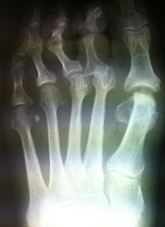рентгенограмма-1