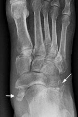 rentgenogramma-2