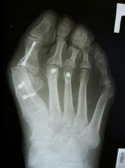 рентгенограмма-2