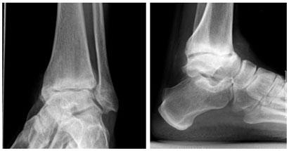 rentgenogramma-artroza-golenostopa