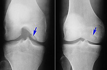 рентгенограмма-болезнь-кенига-1