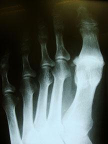 рентгенограмма-до-операции