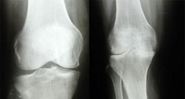 rentgenogramma-kolena-s-artrozom