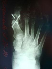 рентгенограмма-металлофиксатор-1