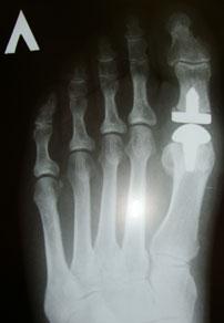 рентгенограмма-после-операции-1