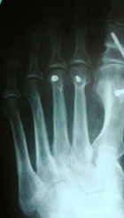 рентгенограмма-после-операции