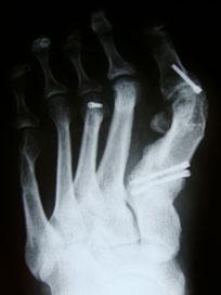 рентгенограмма-после-первичной-операции