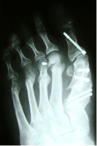 рентгенограмма-после-вторичной-операции