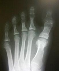 рентгенограмма-стопы-до