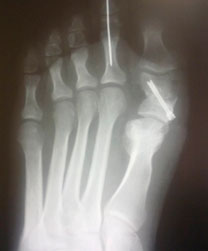 рентгенограмма-стопы-после-операции
