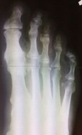 rentgenogramma-stopy