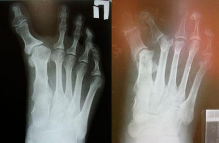 рентгенограмма-варусной-деформации