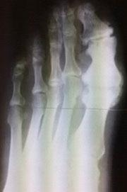 rentgenotgramma-stopy-s-artrozom-pfs