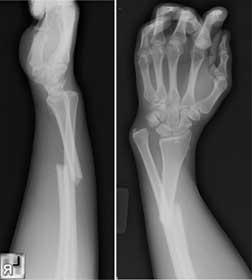 Переломовывих лучезапястного сустава яндекс питание при артрозе суставов