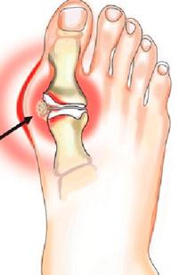 Гноится сустав згиб пальца зарядка для гибкости суставов