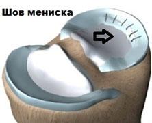 шов-мениска-операция