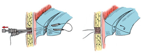 шов-мениска-схема