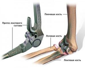 sxema-endoproteza-loktya