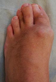 Артрит большого пальца ноги симптомы лечение и профилактика Суставы