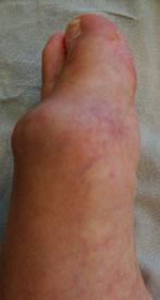 stopa-s-artrozom-pfs-vid-sboku