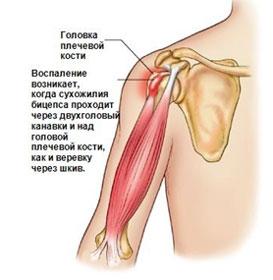 Тендинит надостной мышцы плечевого сустава лечение отзывы снимок коленного сустава в норме
