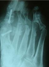 тугоподвижность-рентген