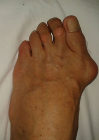 вальгусная-деформация-большого-пальца-2