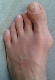 вальгусная-деформация-большого-пальца